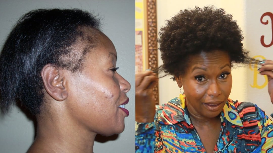 How I Repaired My Thinning Edges 2 Products Video