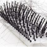Journey Through Hair Loss