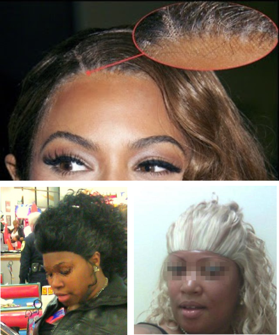 Visible wig line Beyonce