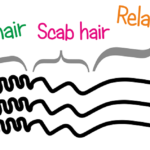 Transitioning 101 – What Is Scab Hair And How Should You Deal With It?