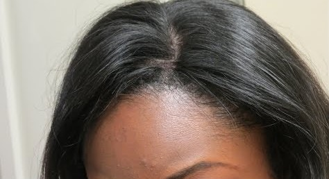 Blend Natural Roots with Lace Closure