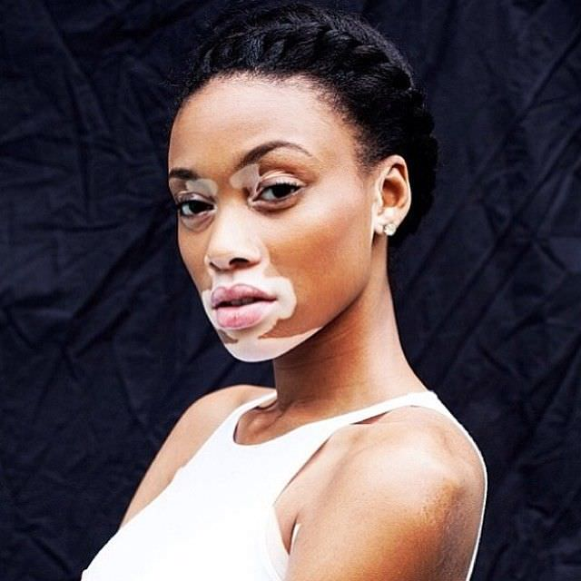 How Antm S Winnie Harlow Inspires Us To Remain Positive