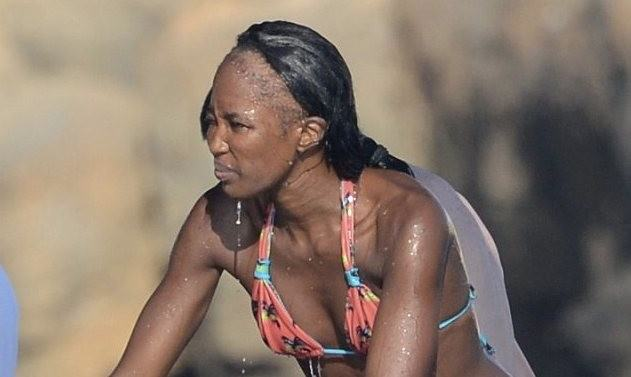 Naomi-Campbell-in-bikini-and-bald-hairline