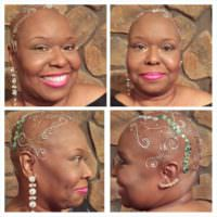 This Is Called Chandelier Celebrating Hair Loss After Cancer Shared By Shay-la Phillips