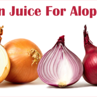 Onion Juice For Alopecia?