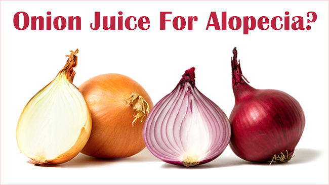 Onion juice for alopecia