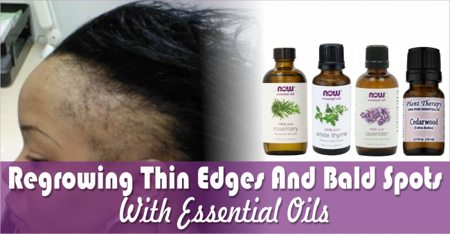 Regrowing-Thin-Edges-And-Bald-Spots-Caused-By-Alopecia-With-Essential-Oils-e1420049147971