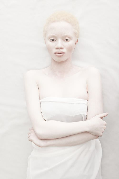 15 Albino Women And Girls With Gorgeous Natural Hair Gallery