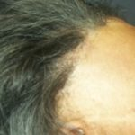 Major Breakthrough For Persons Suffering From Alopecia: Scientists Create Fabulous Cure