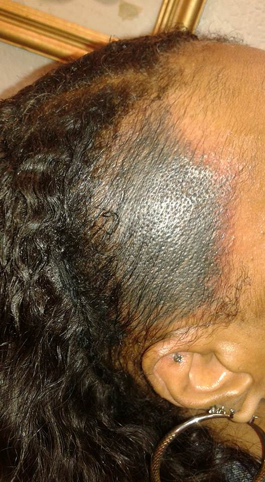 Lost your edges would you ever consider an edge tattoo for Hairline tattoo cost
