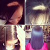 traction alopecia