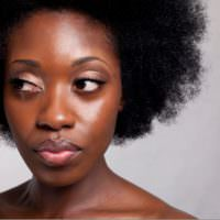 5 Questions About Natural Hair and Dandruff–Answered!