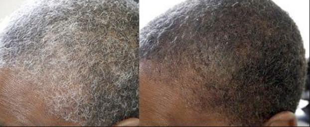 gray hair reversal
