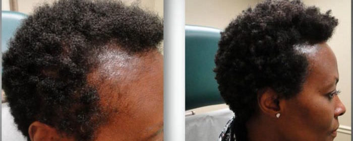 No Surgery, No Drugs – New Hair Treatment For Women Suffering From Hair Loss