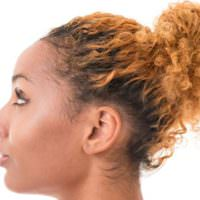 9 Ways To Re-Grow Your Edges And Crown After Hairloss