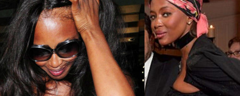 Naomi Campbell Is Planning To Get A Hair Transplant To Fix Her Edges