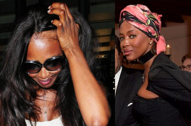 naomi cambpell edges bye wig naomi campbell is planning to get a hair transplant to fix her edges