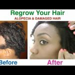 How I Naturally Cured My Alopecia Areata (AA) *Requested* |Homemade Shea Butter Mixture