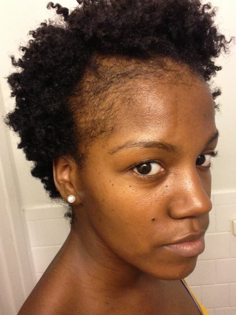 Haircuts For Thin Natural Hair : Help my edges are starting to thin what could be the