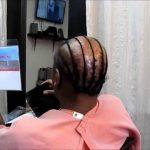 Weave Techniques For Alopecia [Video]