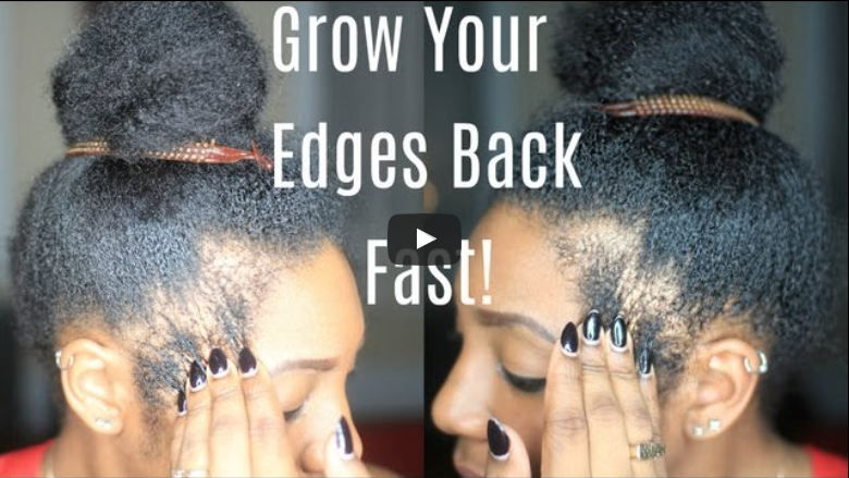 grow-out-your-edges-bald-spots-fast
