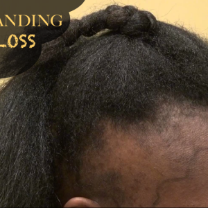 12 Reasons Why You May Be Experiencing Mild To Severe Hair Loss