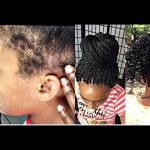 TIPS to protect WEAK EDGES + ITCH FREE SENEGAL TWIST [Video]