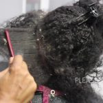 Picking Big Scalp Flakes Psoriasis and Dermatitis Sew In Removal [Video]