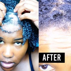 Bald Spot Update – I Grew Out My Hair Fast In Less Than 30 Days [Video]
