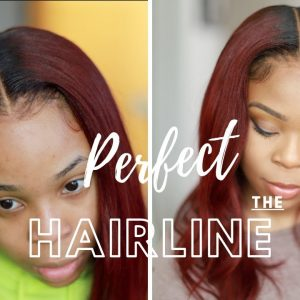 Celebrity Secrets & Beginners Guide To Perfecting Your Hairline
